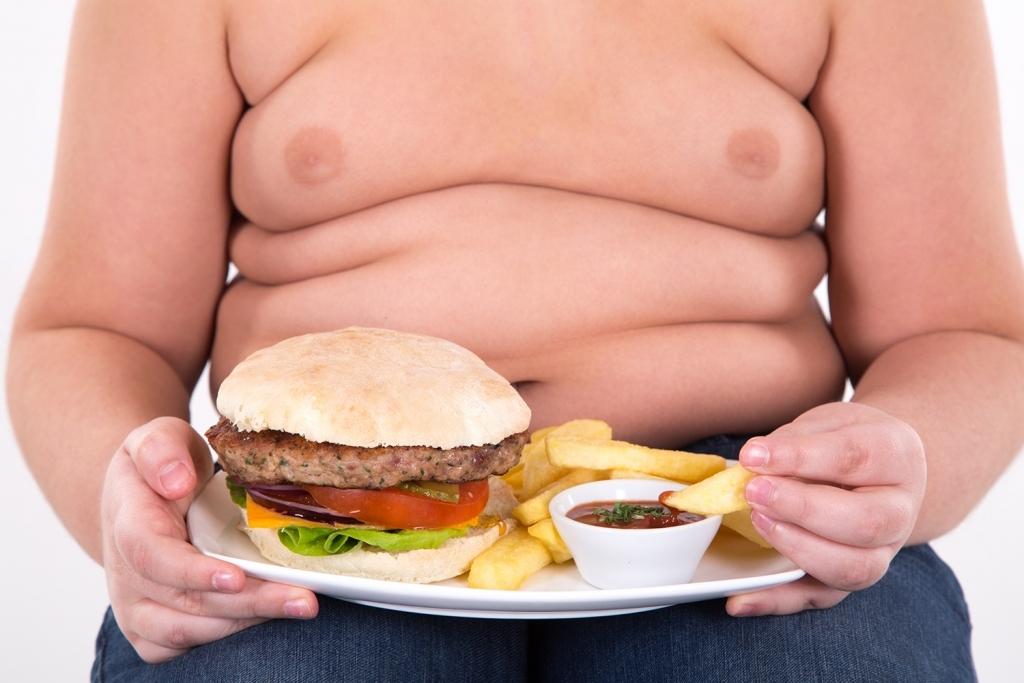 Legislativo aprova projeto de lei de prevenção e combate à obesidade